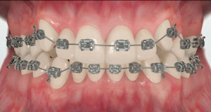 How_do_braces_work2