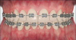 How_do_braces_work3