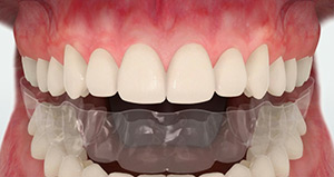 Dental Retainer Canberra - Orthoclinic